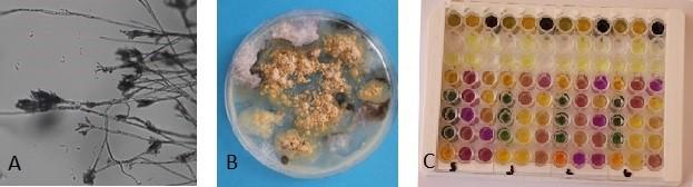 Obrázek 2: A– Penicillium sp. pod mikroskopem, zvětšení 400x, B – růst plísní na Petriho misce sživnou půdou avzorkem omítky, C – mikrotitrační deska sbiochemickými reakcemi pro identifikaci bakterií